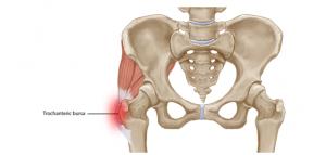 Symptoms of Hip (trochanteric) Bursitis