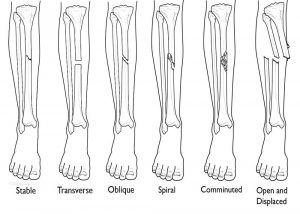 Tibia fractures in knee