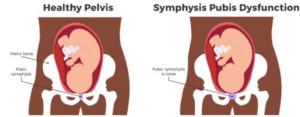 symptoms of symphysis pubis dysfunction