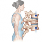spinal compression fracture treatment singapore