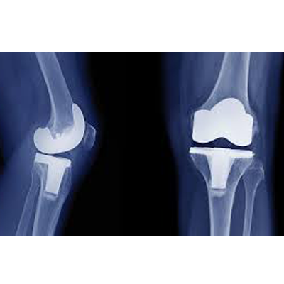 Knee Pain Treatment in Singapore